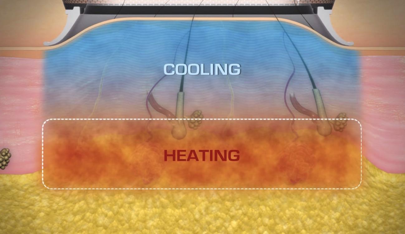MiraDry apparatet tilfører køling, så huden beskyttes, og svedkirtlerne destrueres, hvilket sikrer et vedvarende resultat.